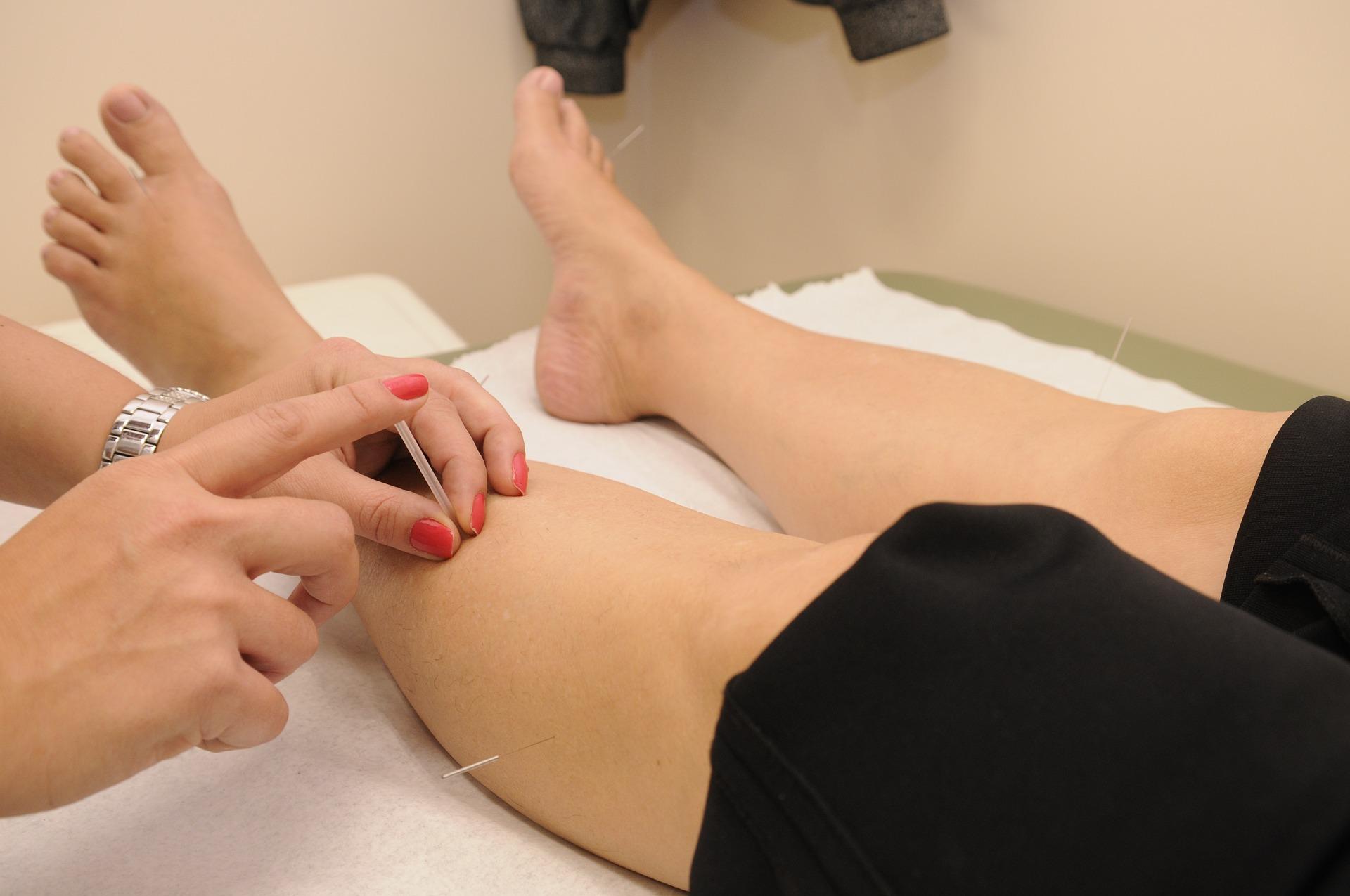 Acupuncture chinoise avec aiguilles à Genève